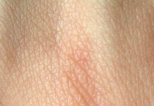 Dermatología y dermatólogos